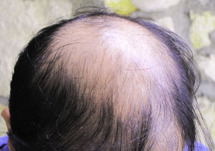 Exoderm Hair implant Biofibre Before
