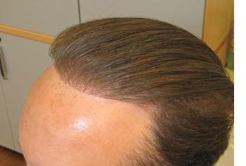 Exoderm Hair implant Biofibre After